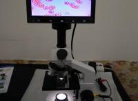 一滴血检测仪显微检测系统