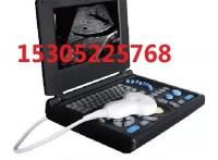 B型超声诊断仪生产厂家