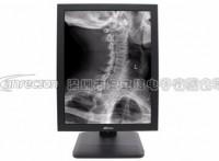 安立信21.3寸5惭医用灰阶显示器,高清医用显示器监视器品牌